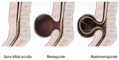 spina bifida,pregnancy,Types of spina bifida,Causes of spina bifida